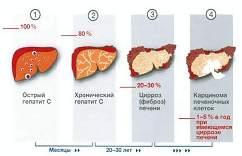 Диета при болезни печени нежирные молочные