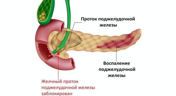 Диета при панкреатите поджелудочной железы примерное меню воду, затем нужно начинать