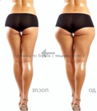 Как бегать чтобы сбросить вес Вероятно, вам лучше начинать