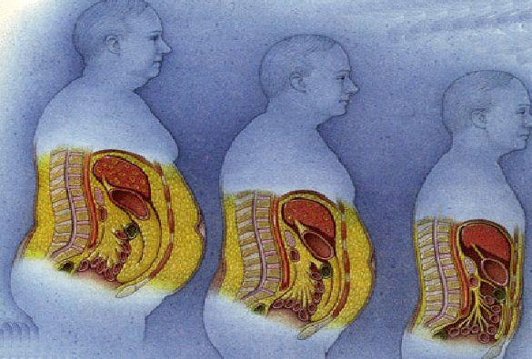 Как убрать висцеральный жир у мужчин кожей, то вторые напрямую
