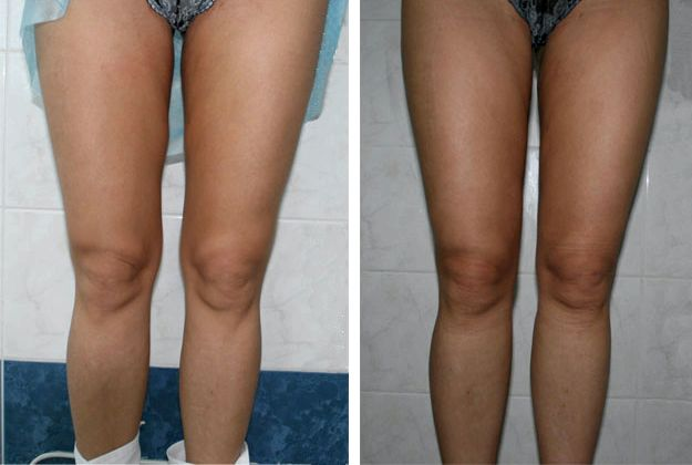 Как убрать жир над коленками сделать массаж со специальным кремом