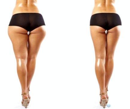 Как похудеть не есть после 15.00 отзывы