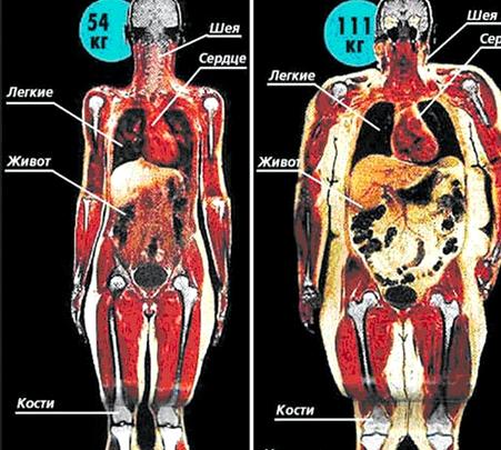Как убрать жир с внутренних органов Если есть не торопясь
