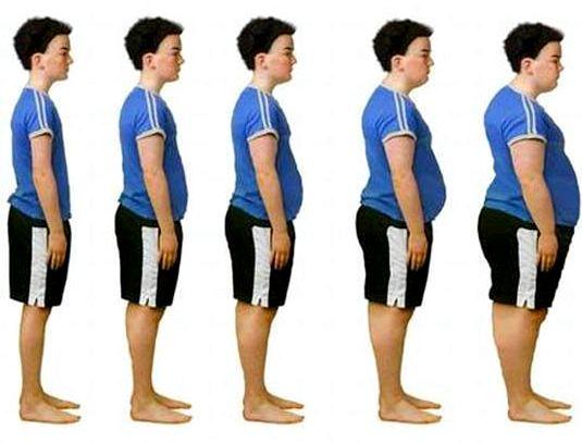 Лишний вес у подростков ожирения детей