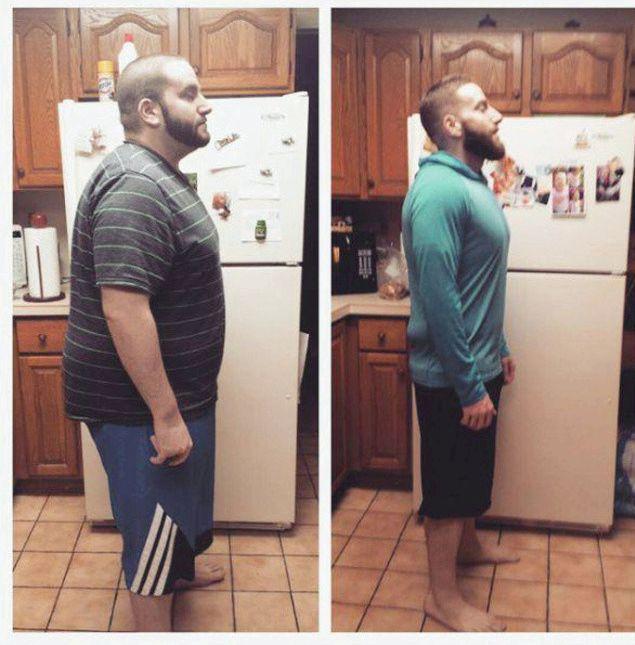 Люди с лишним весом развивающихся странах, страдающих избыточным весом