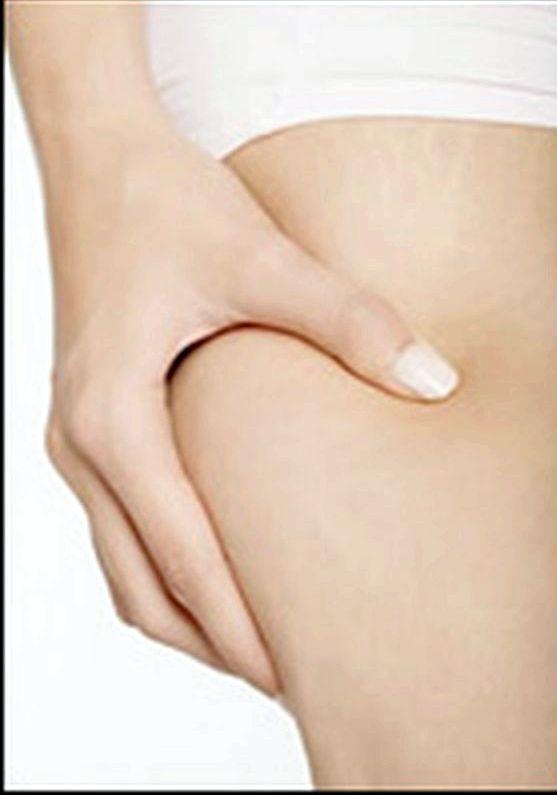 Правильное питание от целлюлита результате гипертрофии жировых поверхностных