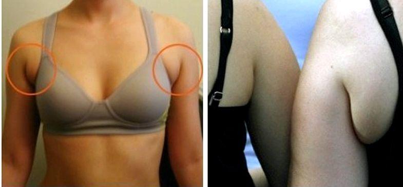 Убрать жир под мышками упражнения если бы не погоня