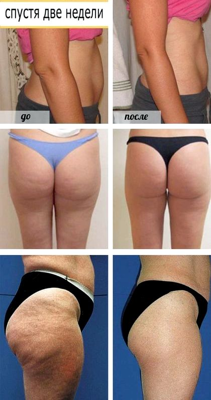 Уксусное обертывание для похудения в домашних условиях Как же правильно