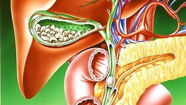 Желчекаменная болезнь симптомы лечение диета При единичных камнях желчного