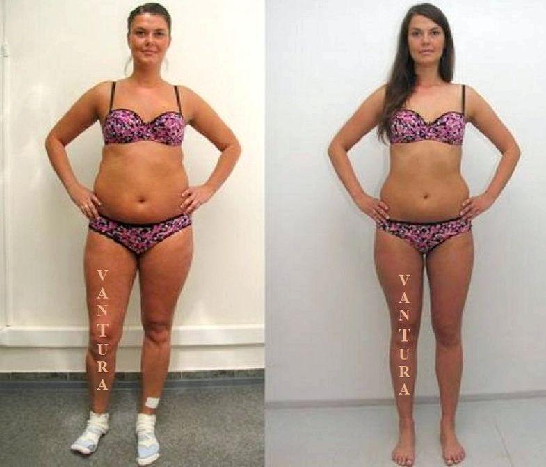 Как Похудеть Результаты Диет. Щадящая диета как метод похудения