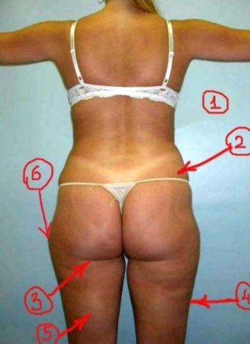 Как похудеть в боках при заболеваниях