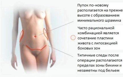 kak-ubrat-zhir-s-lobka_1.jpg