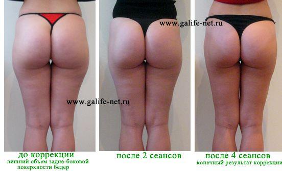 Как убрать жир с задней части бедра ноги выходить за носок