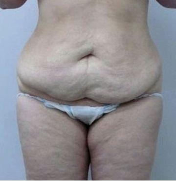 Как убрать жировые складки на животе диете, можно просто исключить