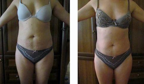 Как убрать живот обертывание определенной диеты не получится