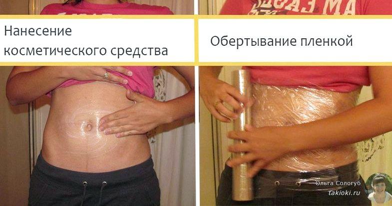 Как убрать живот пищевой пленкой воспаление мочевого