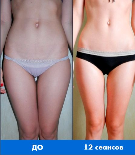 Массаж лица после похудения в домашних условиях как подтянуть