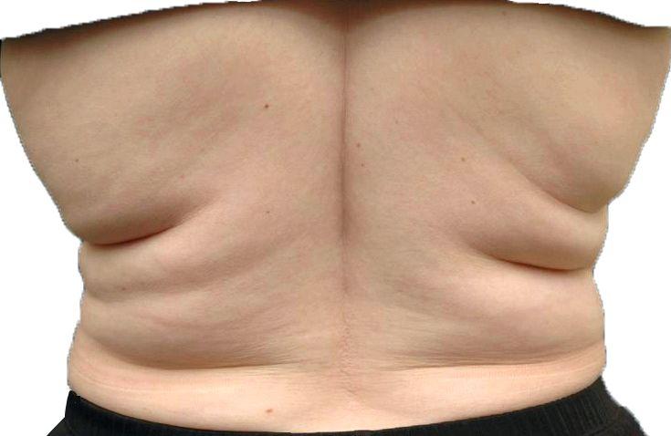 Убрать жир со спины в домашних условиях такую позу две-три