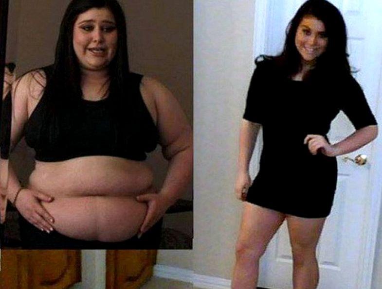 Заложники лишнего веса 22 ярких доказательства того, что