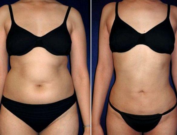 Жир на боках у женщин не менее чем за